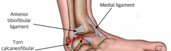 Are You Still Having Pain After An Ankle Sprain?