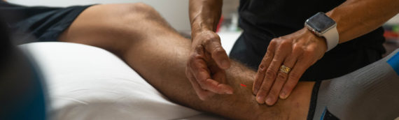Recovery Acupuncture for Athletes – Baldwin Park, Orlando