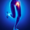 Anterior Hip Pain: Do you have Femoroacetabular Impingement (FAI)?